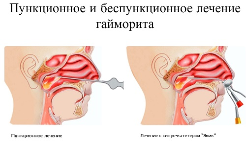 Способы лечения гайморита