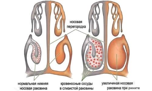 Симптоматика стафилококковой инфекции