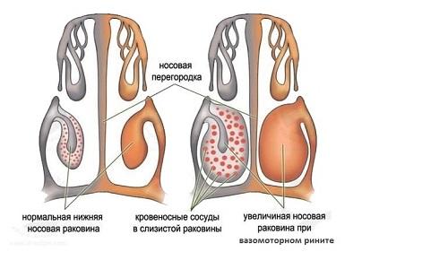 Аллергическийнасморк и его код МКБ-10 фото