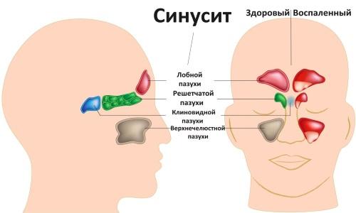Опасности синусита при беременности
