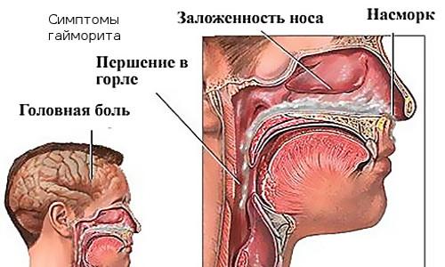 Гайморит и его симптомы