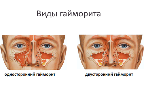 Методики проведения ингаляции при гайморите