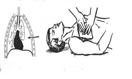 Окклюзионная повязка при пневмотораксе