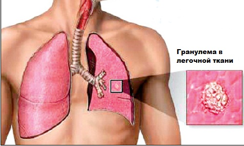 Клиническая картина разных форм