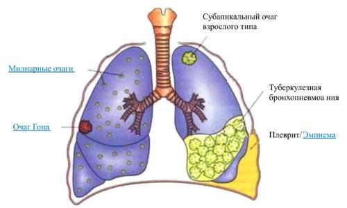 Милиарные очаги туберкулёза
