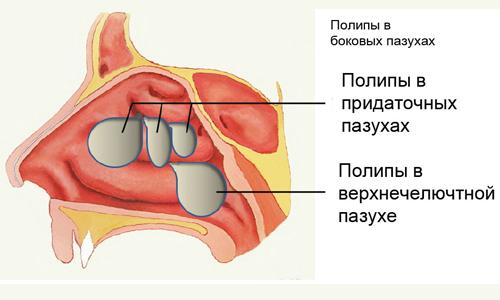 Как проводится процедура? фото
