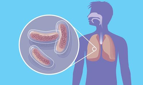 Туберкулез - причина пневмоторакса