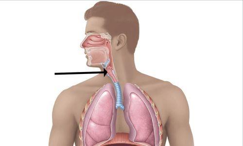 Поражение гортани возбудителями туберкулеза