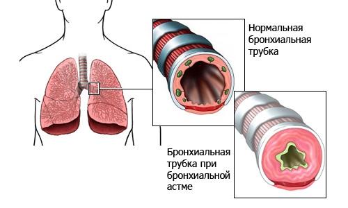 Можно ли в баню при бронхиальной астме