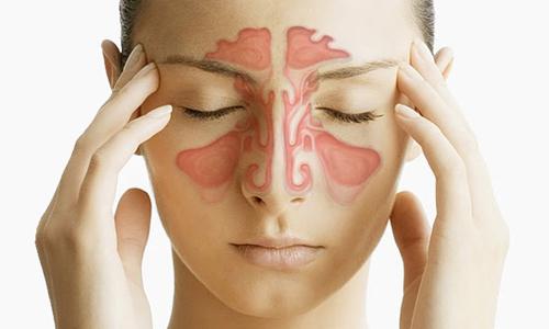 Хронический вазомоторный ринит