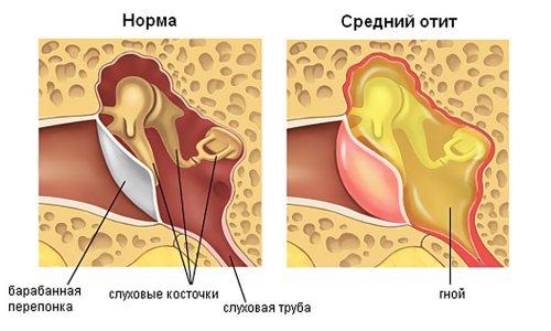 Воспалительные заболевания уха фото