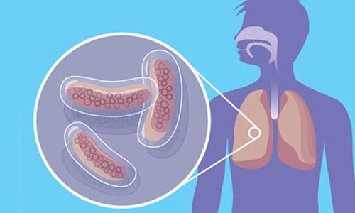 Особенности туберкулезной инфекции фото