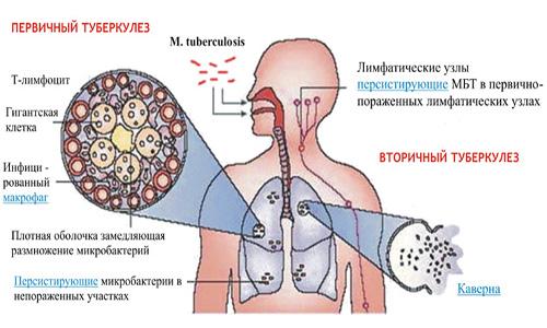 Особенности туберкулезной инфекции