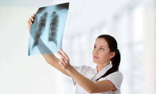 Флюорография для диагностики туберкулеза