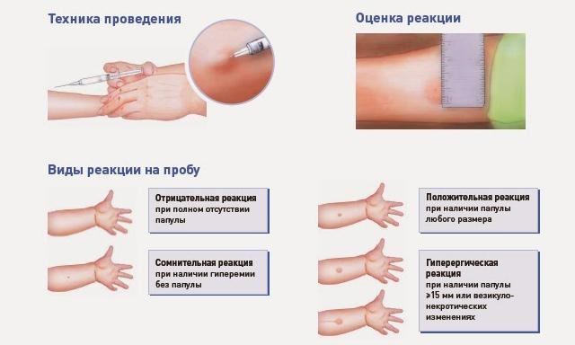 Необходимость вакцинации