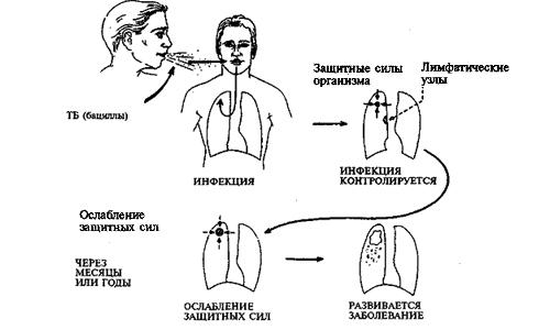 Виды туберкулезной инфекции