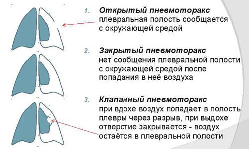 Классификация пневмоторакса