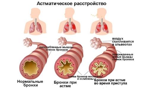 Этиология бронхиальной астмы