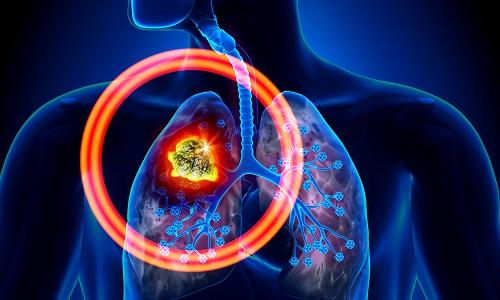 Гемоторакс при болезнях легких
