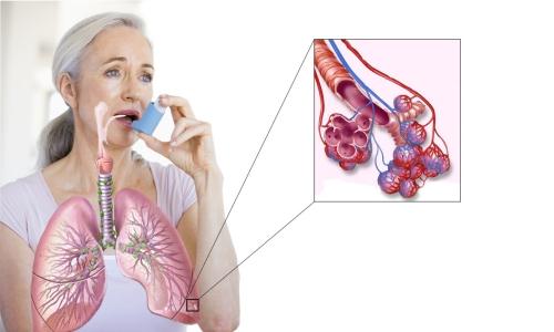 дыхание по стрельниковой при бронхиальной астме