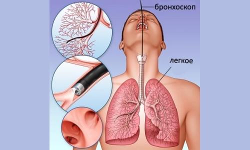 Способы выявлениятуберкулезной инфекции фото