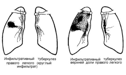 Инфильтративная фаза заболевания