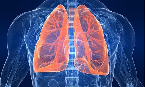Проблема клапанного пневматоракса