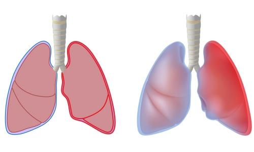 Заболевание туберкулезным плевритом