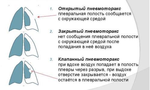 Методы диагностики фото