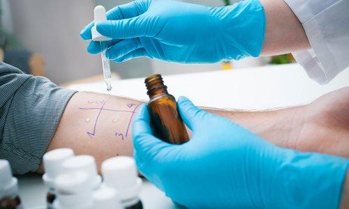 Кожная проба при диагностике астмы