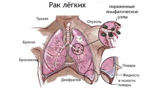 Рак легких вследствие курения