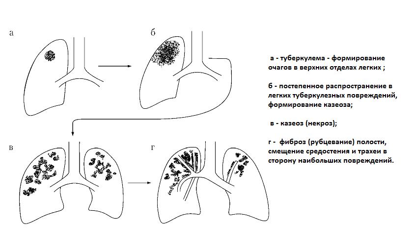 Типы распространения туберкуломы легких
