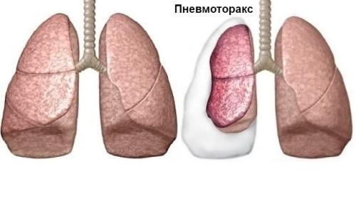 Постановка первоначального диагноза