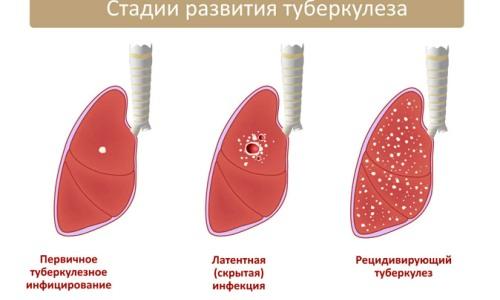 Виды туберкулезной инфекции фото