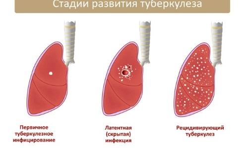 Начало и первые признаки туберкулеза легких фото