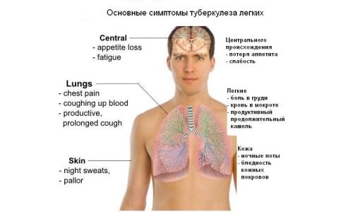 Особенности симптоматики