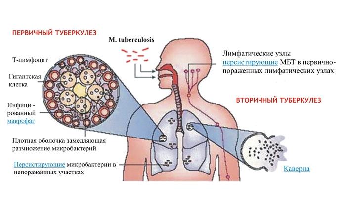 Факторы риска туберкулезной инфекции