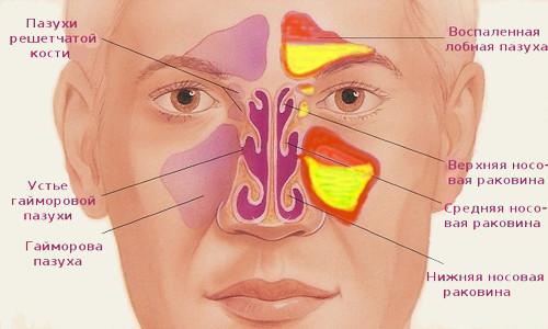 Анатомия верхнечелюстной пазухи