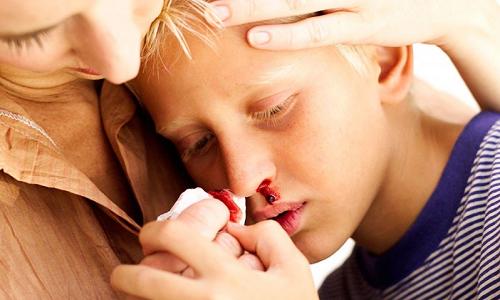 Проблема выделения крови из носа у ребенка