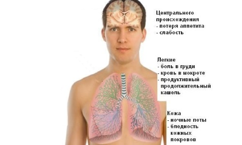 Подходы к лечению туберкулеза фото