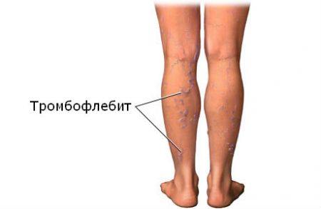 Патогенез развития эмболии легочной артерии