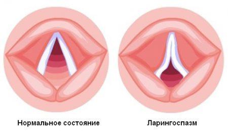 Что способствует развитию недуга? фото