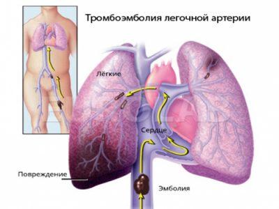 Виды тромбоэмболии
