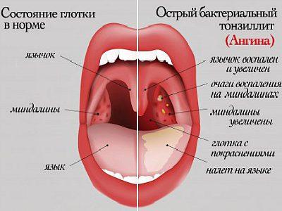 Отличия различных типовинфекции