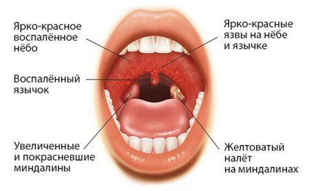 Классификация по МКБ-10 фото