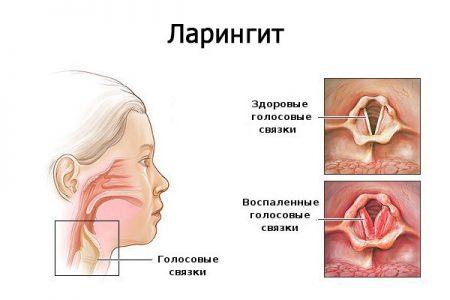 Разновидности болезней и их симптоматика
