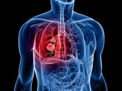 Выделение крови при раке легких