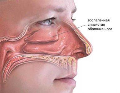 Причины болевого синдрома при насморке