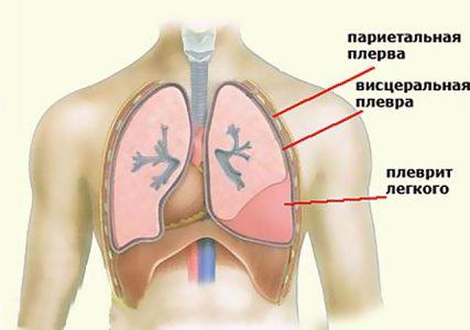 Крепитация в лёгких