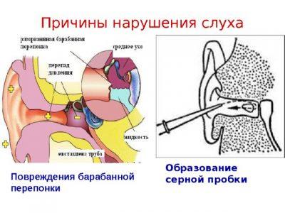 Причины нарушения слуха